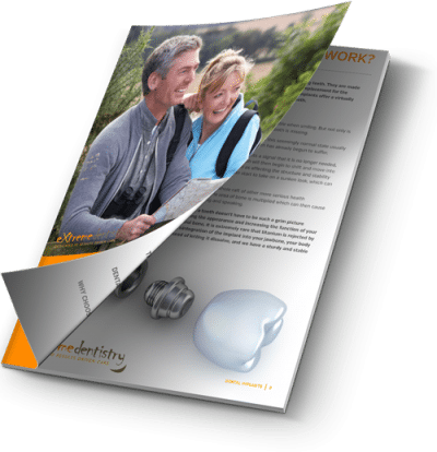 dental implants guide and information