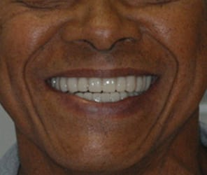 CASE STUDY: Restoring The Smile With A Full Mouth Rehabilitation