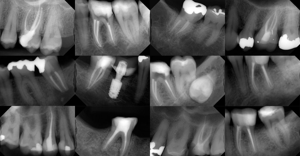 Examples of saved teeth at Extreme Dentistry