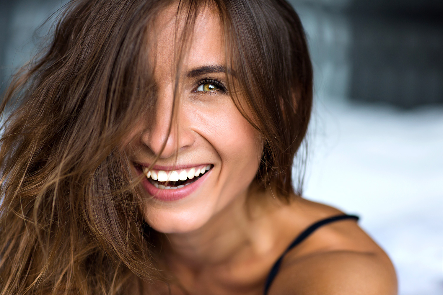 Dental Veneers – What You Need To Know